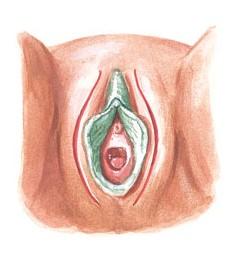 FGM 3.1