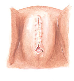 FGM 3.3
